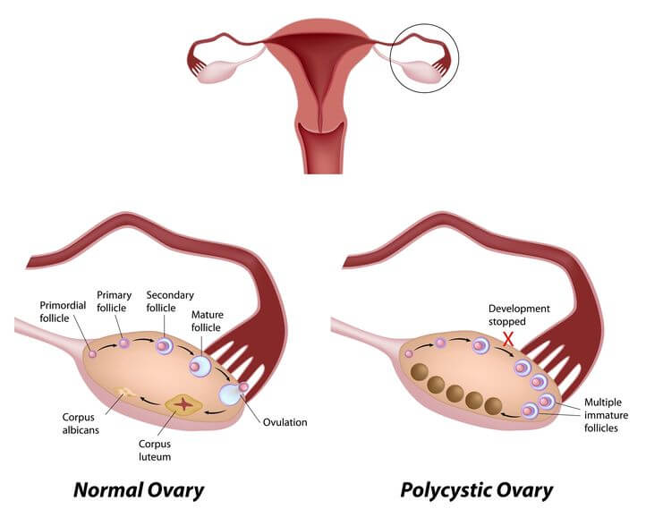PCOS Treatment by Dr  Victor Tsan at the Philadelphia Homeopathic Clinic
